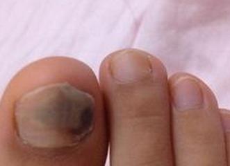 得灰指甲诱因有哪些