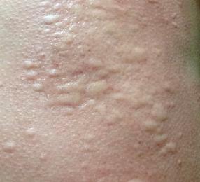 得了荨麻疹传染人吗