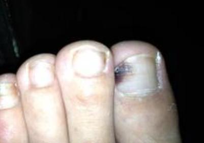 灰指甲原因有哪些