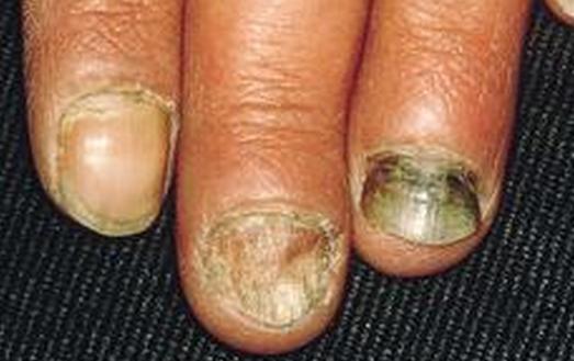 灰指甲的原因有哪些