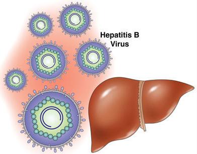 引起乙型病毒性肝炎的原因