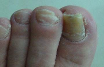 得灰指甲原因有哪些