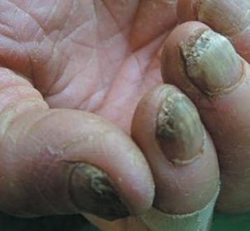 患灰指甲的原因有哪些