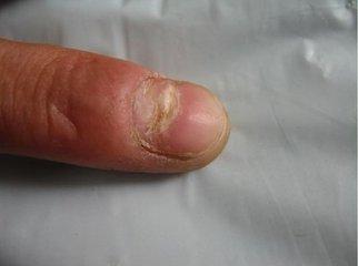 灰指甲发作前兆有哪些症状
