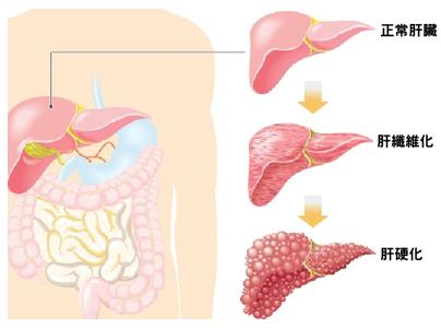代償期肝硬化治療有哪些