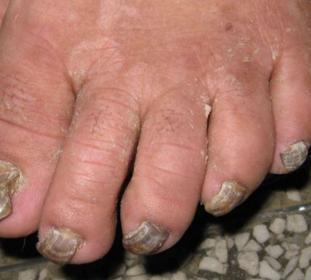 灰指甲发作的预兆是什么