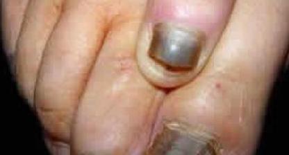 重度灰指甲是否会遗传