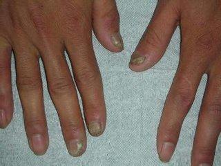 患灰指甲的起因是什么呢