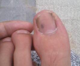 轻度灰指甲是否会遗传
