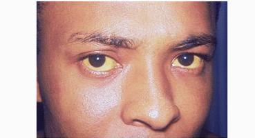 引起黄疸肝炎的原因有哪些