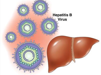 乙型病毒性肝炎症状