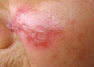 皮肤病红斑狼疮该怎样预防