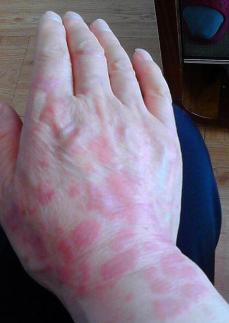 红斑狼疮致病原因有哪些