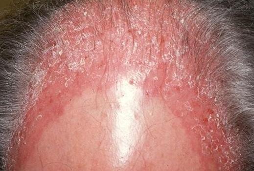 牛皮癣头癣症状是什么