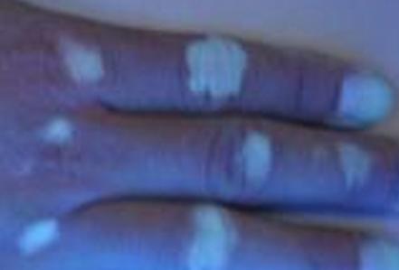 白癜风会给患者带来什么危害性