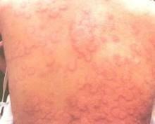 荨麻疹病源有哪些呢