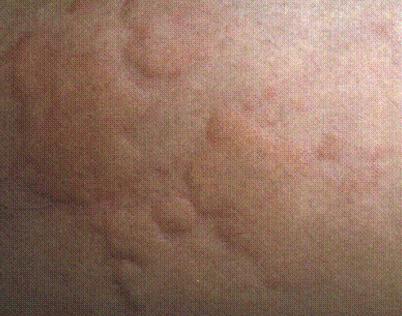 荨麻疹的发病原因有哪些