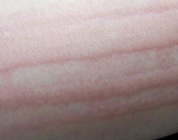 什么是荨麻疹皮肤划痕症