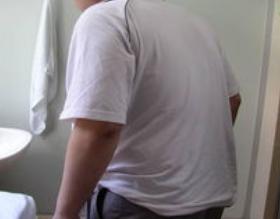强直性脊柱炎常见的症状