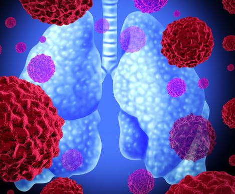 支气管与肺泡的关系就好像树干