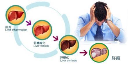 自身免疫性肝炎病因