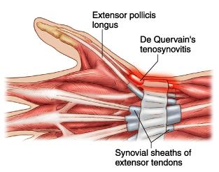 治疗大拇指腱鞘炎注射方法可行吗