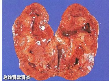 肾盂肾炎前期怎么预防