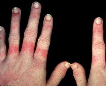 红斑狼疮怎样才能确诊呢