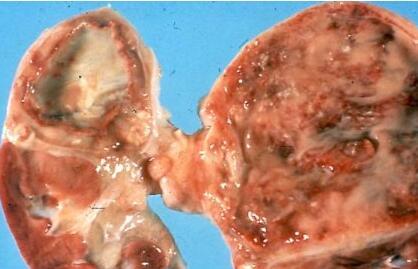 肾盂肾炎的病因是什么呢