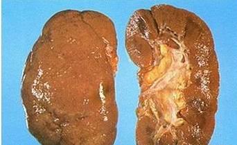 肾盂肾炎怎么治疗呢