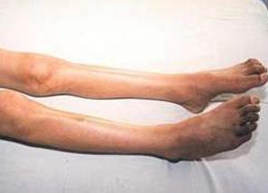运动型肌肉萎缩症是什么原因引起的