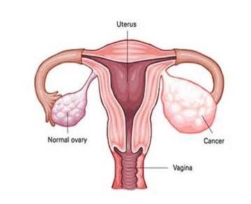 右卵巢囊肿的危害图片