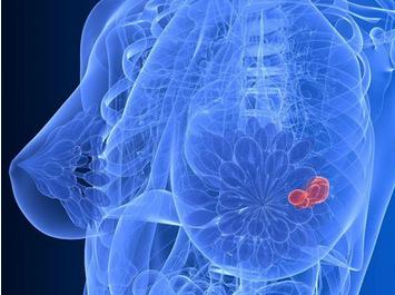 乳腺增生图片介绍