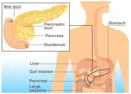 胰腺癌发热怎么办