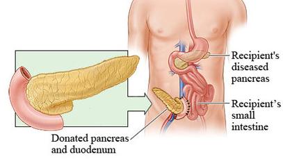胰腺癌中医的原因是什么