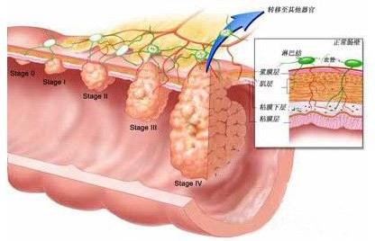 在中下段的直肠癌确诊手术之后,必须要先辅助的放疗,这个往往是很多