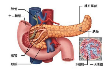 胰腺癌手术后遗症