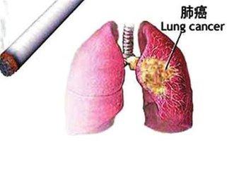 肺癌治療費用是多少呢