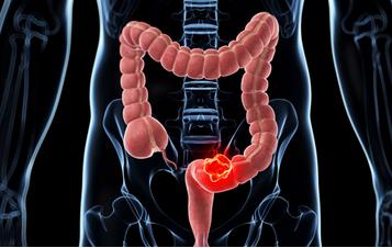 结肠癌复查项目有哪些