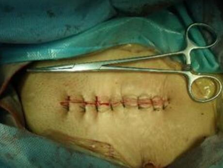 结肠癌的手术方式有哪些