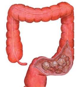 早期结肠癌有哪些症状