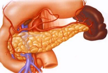 手术治疗胰腺癌术前有哪些准备工作