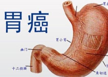 胃癌靶向治療的費用是多少呢