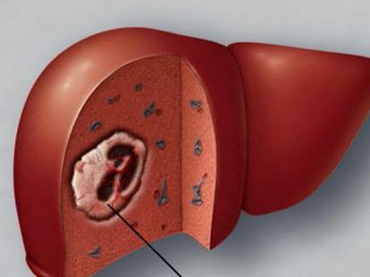 治疗肝癌大概多少钱