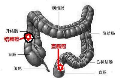 結腸癌的常見信號有哪些呢