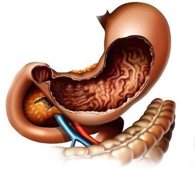 膽囊癌黃疸傳染嗎有什么表現