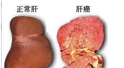 如果患者患有肝癌能要孩子吗