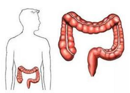 造成肠癌的主要原因是什么