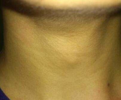 脖子淋巴癌的原因有哪些