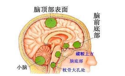 治疗脑肿瘤偏方|髓母细胞瘤疾病食疗好方法
